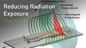 Reducing Radiation Exposure