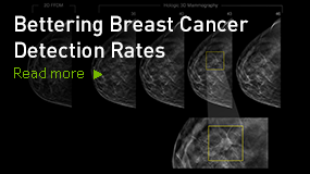 Bettering Breast Cancer Detection Rates