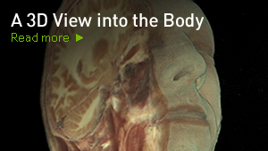 A 3D View into the Body
