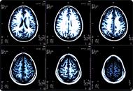 MRI Multi Scan
